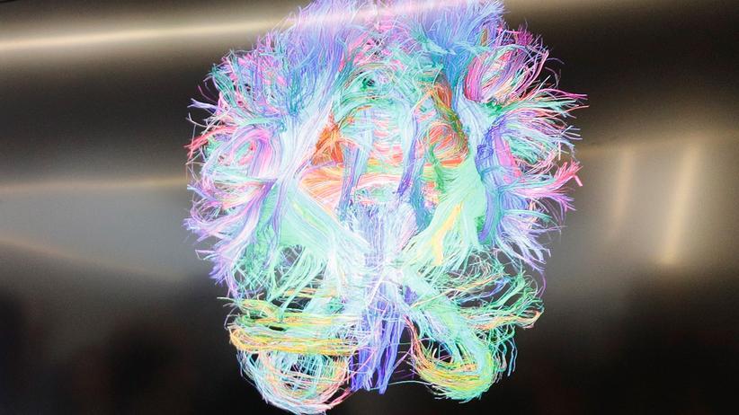 Neurologie: der Scan eines menschlichen Gehirns