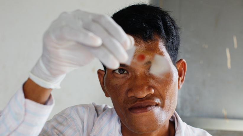 Malaria: Forscher warnen nach US-Kürzungen vor Millionen neuer Malaria-Fälle