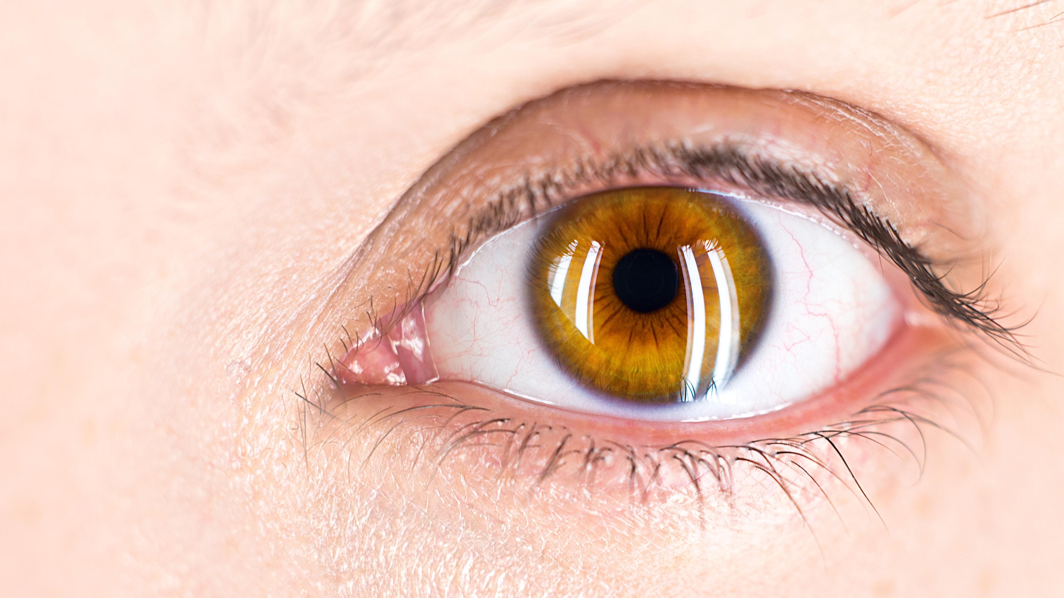 Augen lasern – ist das nicht gefährlich?