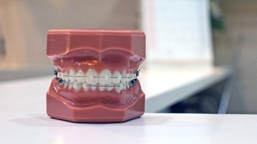 Kieferorthopädie: Medizinischer Nutzen von Zahnspangen laut Gutachten nicht belegt