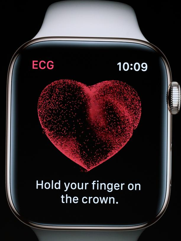 Apple Watch Jeff Williams EKG Herz