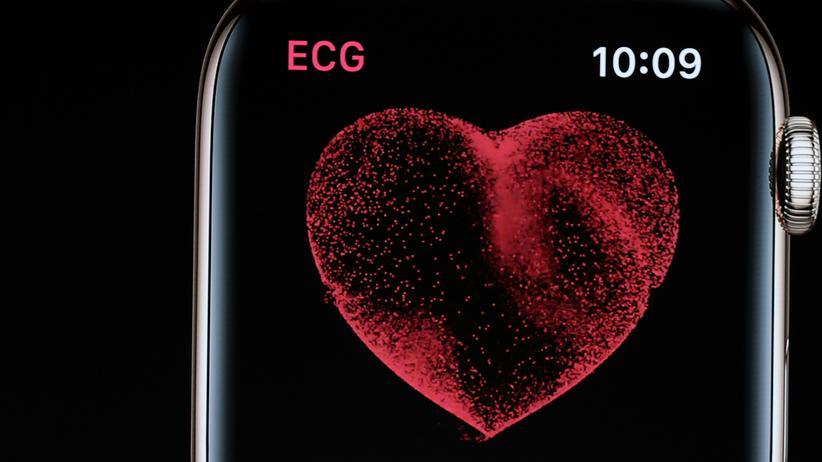 Herzkrankheiten: Wie gut warnt die Apple Watch vor Vorhofflimmern?