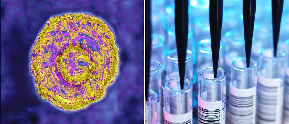 Hepatitis C: Den Leberkiller überführt