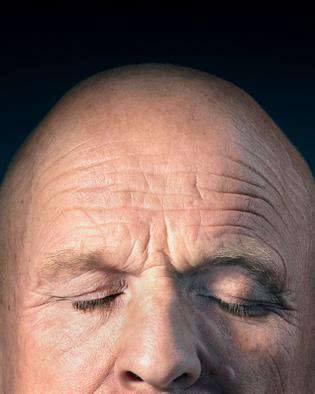 Haarausfall bei Männern: Es wird licht